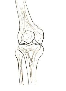 Arthrose osteopathisch betrachtet