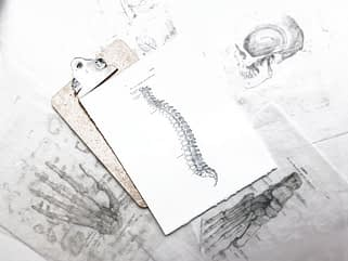 Skizze einer Wirbelsäule für die Beratung in der Osteopathie